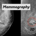 Breast Cancer Awareness: Why 3D Mammograms?