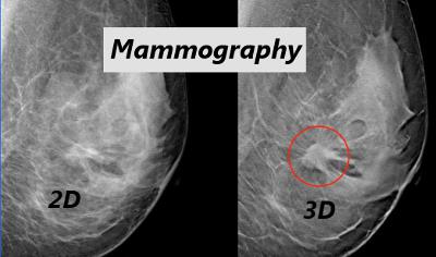 3d Mammograms Offer Earlier Detection