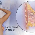 Breast Cancer Awareness: Detection